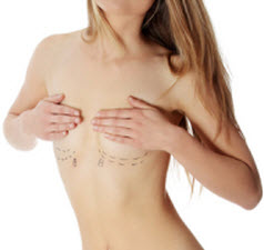 Breast Cosmetic Surgeries