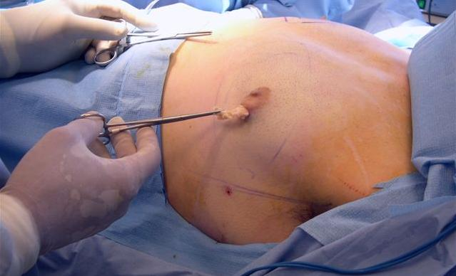 Is Liposuction only for women