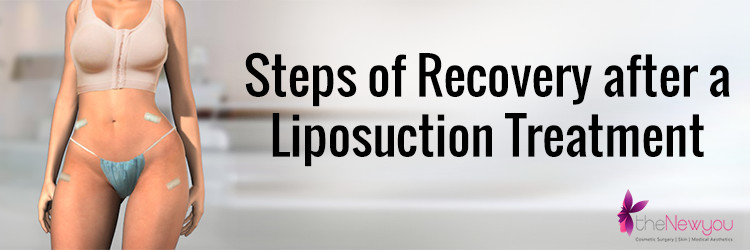 Steps of Recovery after a Liposuction Treatment