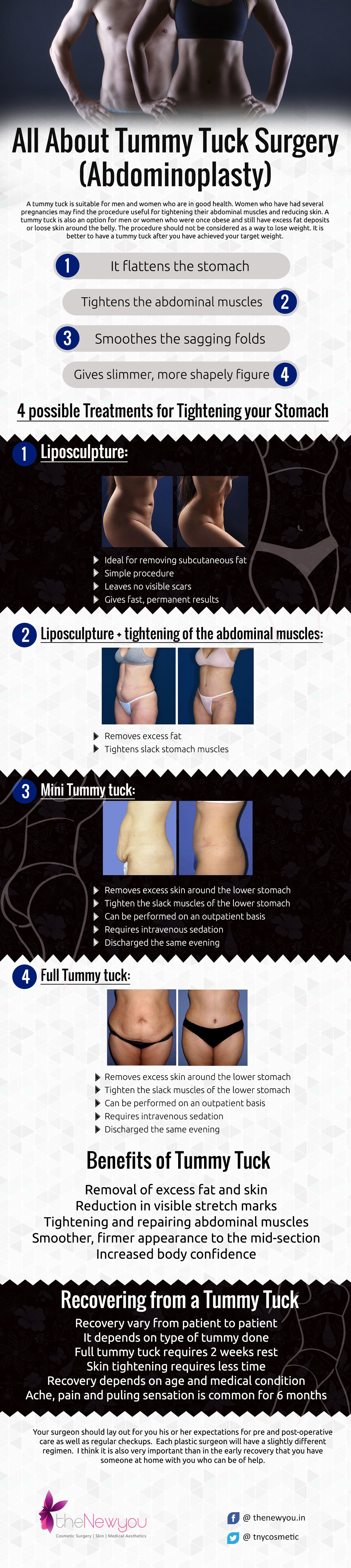 Tummy Tuck surgery - Abdominoplasty
