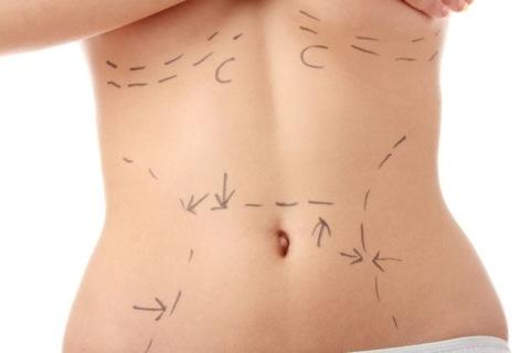 liposuction-kadinlar-icin-vaser-hi-def