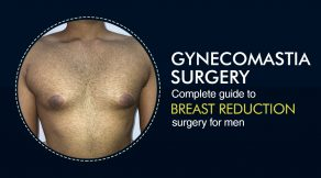 Breast Reduction Surgery for Men