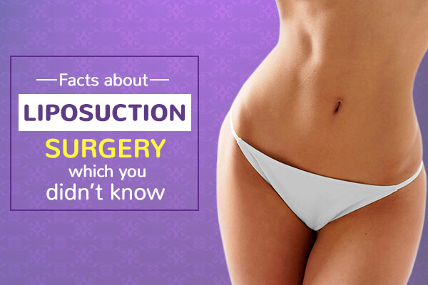 Facts about Liposuction Surgery