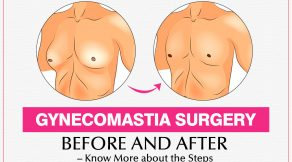 Gynecomastia surgery before and after