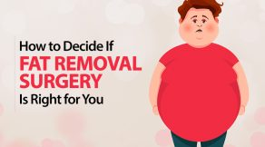 How to Decide If Fat Removal Surgery Is Right for You