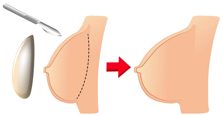 Different Types Of Breast Augmentation Shapes As Per Your Body