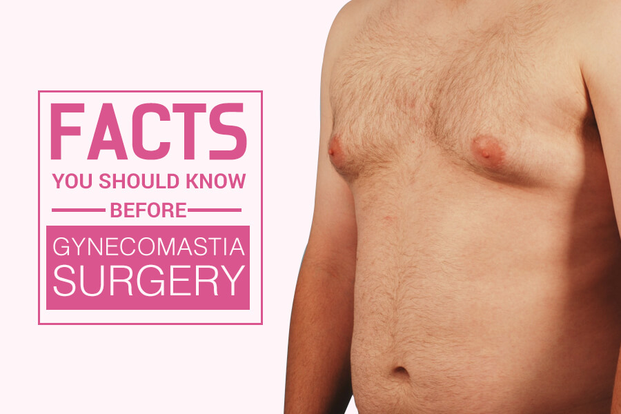 Know Before Gynecomastia Surgery