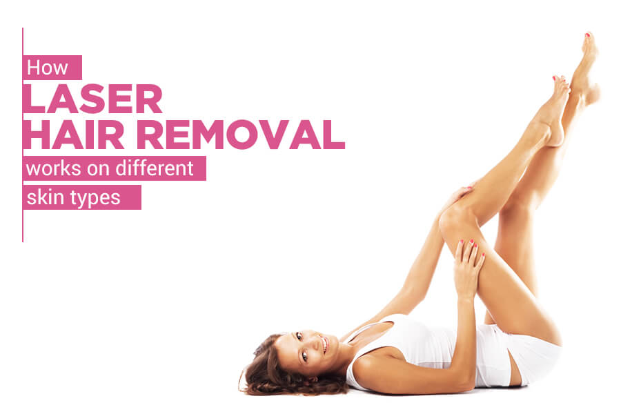 Laser Hair Removal Works