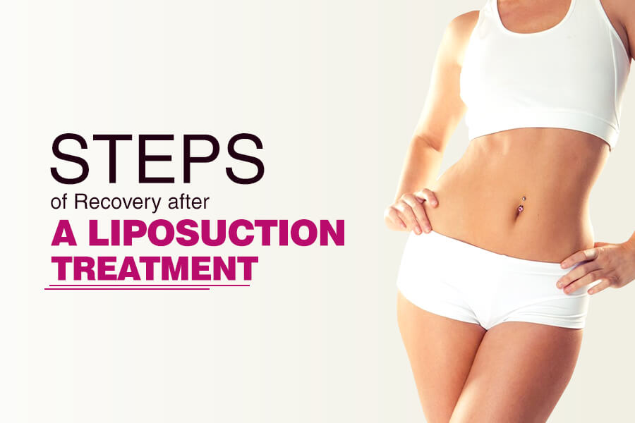 9 Important Steps To Recovery After A Liposuction Treatment