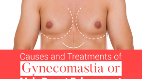 Treantments of Gynecomastia